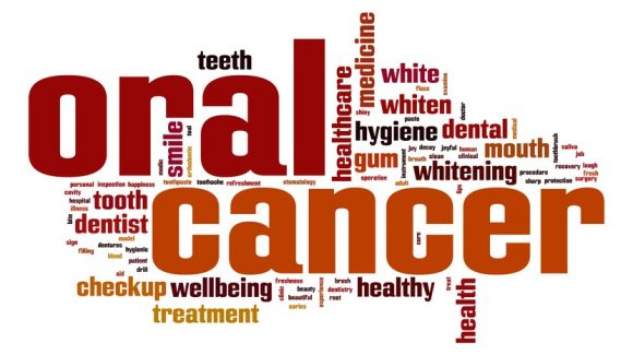 Oral Hygiene linked to Cancer Risk